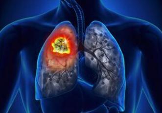 女性肺癌患者增长速度已超过男性,厨房油烟或为元凶
