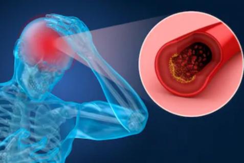 ?研究发现硒纳米颗粒能促进脑损伤恢复,帮助治疗中风