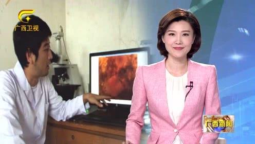 """广西首例室内人工繁育珊瑚""""宝宝""""在涠洲岛成功""""诞生"""""""