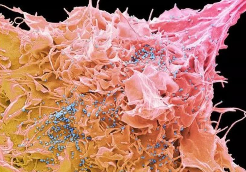研制四十年,年耗8亿美元的HIV疫苗何时能真正问世?