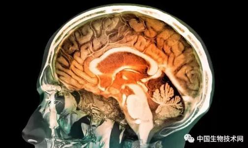 大脑为什么有意识?探索大脑的意识起源