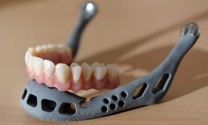 3D打印植入技术修复下颌骨,浙江首例实施成功