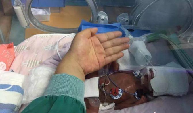湖北十堰600克巴掌大女婴活下来了,全力救治125天堪称人间奇迹!