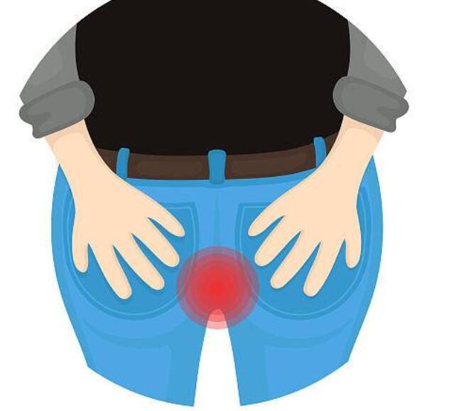 肛门瘙痒外敷没有效果要小心了,有可能是癌!