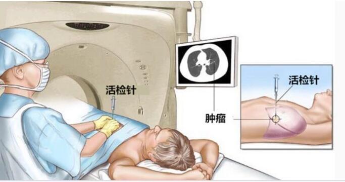一文帶你了解CT引導下的穿刺活檢