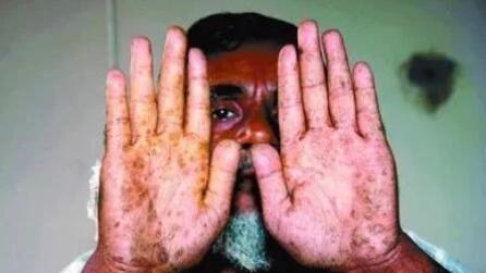 一文了解砷金属对人体的危害