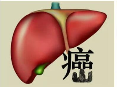 """我国慢性肝病患者超4亿人,我们该如何呵护""""小心肝"""""""