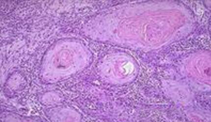 高分化鳞状细胞癌严重吗?怎么治疗?主要症状是什么【综述】