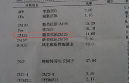 糖类抗原125高怎么办?糖类抗原125高的原因