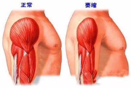肌肉萎缩的原因有哪些?肌肉萎缩能治好吗?怎么治疗