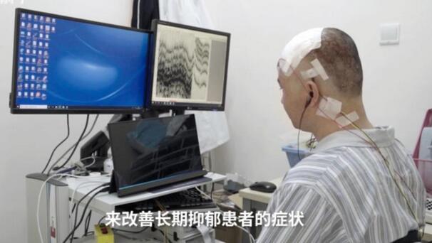 """腦機接口技術對抑郁癥患者開展物理治療,我們可以成為""""正常人""""嗎?"""