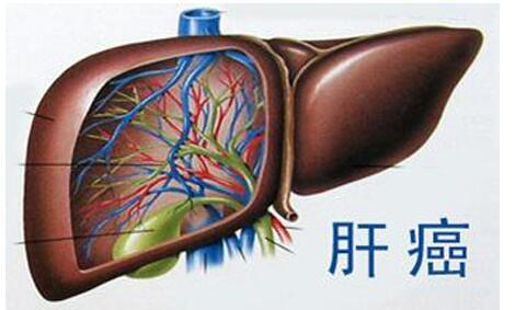 生物學新特征為肝癌精準醫療提供了線索,肝癌為什么一發現就是晚期居多