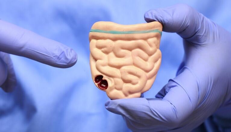 """上海四院提出""""净瘤肠镜""""筛查大肠癌新策略,早发现三个月能多活三十年"""