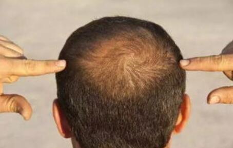 掉头发缺什么?掉头发怎么办?