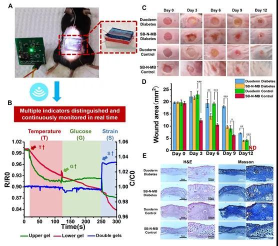 仿生离子皮肤用于糖尿病伤口指标的实时监测与信号解耦