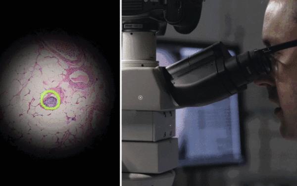 谷歌AI显微镜 0.0758秒就给你揪出来癌细胞