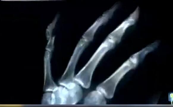 碰瓷党为碰瓷,故意砸断手指,行车记录仪有用吗?
