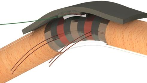 加拿大科学家开发新型自供电传感器,可用于关节手术患者的康复监测