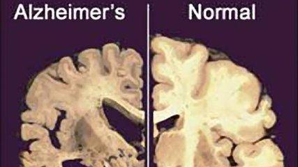 施一公在《科学》发表最新研究成果 为治疗阿尔茨海默症提供策略