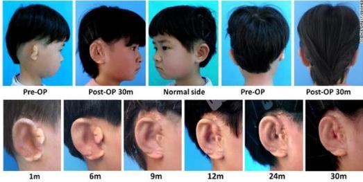 3D打印技术制成移植用的人造耳朵