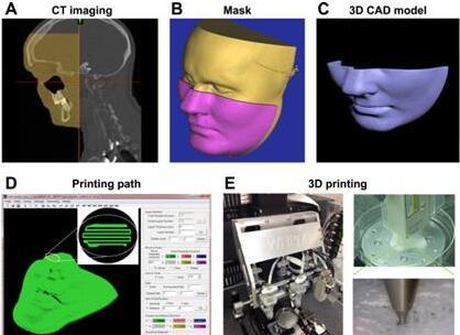 WFIRM证实生物3D打印BioMask可以快速治愈面部皮肤伤口
