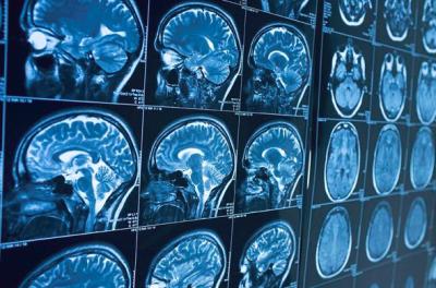 美敦力完成首例深部脑刺激植入设备商业治疗 癫痫患者福音