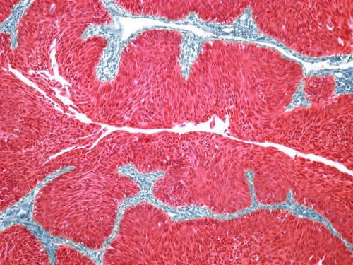 美国FDA加速批准杨森开发的Balversa:首款膀胱癌个体化疗法