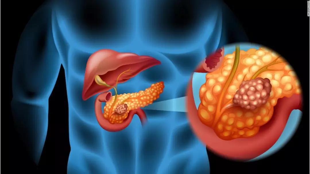 中美合作发现胰腺癌治疗的重要靶点与生物标志物