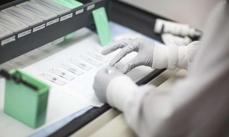 美国数据统计:乳腺癌患者使用基因检测可降低医疗成本