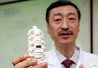 全球首例!3D打印人工颈椎间盘置换术应用成功