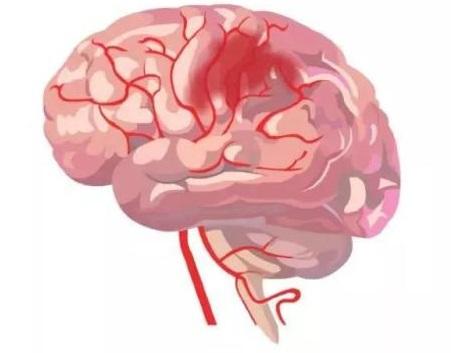 莱顿大学学者研究发现硒纳米颗粒可以帮助治疗中风:缺血性脑卒中