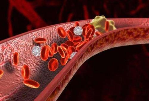 石药集团开发的新型抗血栓药物替格瑞洛片获批