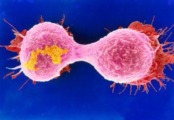 科罗拉多大学发现一种解除癌细胞消耗葡萄糖能力的新方法