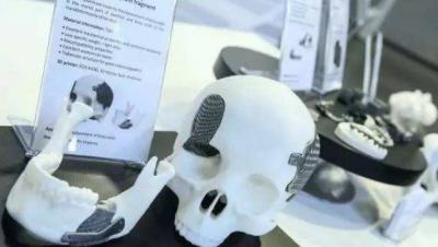 3D打印医疗器械市场到2025年CAGR增长将达17.7%