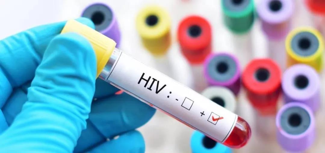 美国首次发现艾滋病患者自身蛋白可抑制HIV病毒