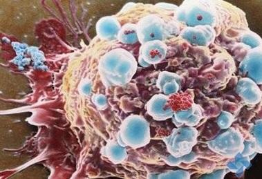 美国癌症中心发现肿瘤细胞利用MAPK通路抵抗TRK抑制剂