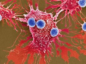 宾夕法尼亚大学揭示CAR-T细胞疗法有望治疗心脏病