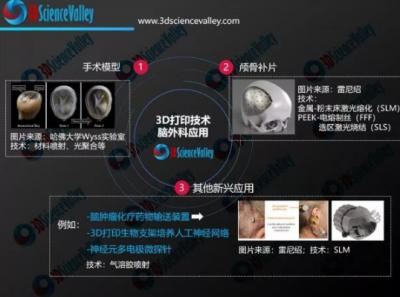 3D打印微电极助力脑神经修复治疗 还将为治疗截瘫提供新途径