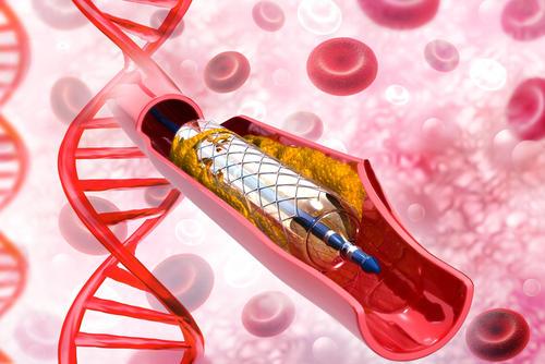 乐普医疗上市全球首款生物可吸收心脏支架 助力介入治疗