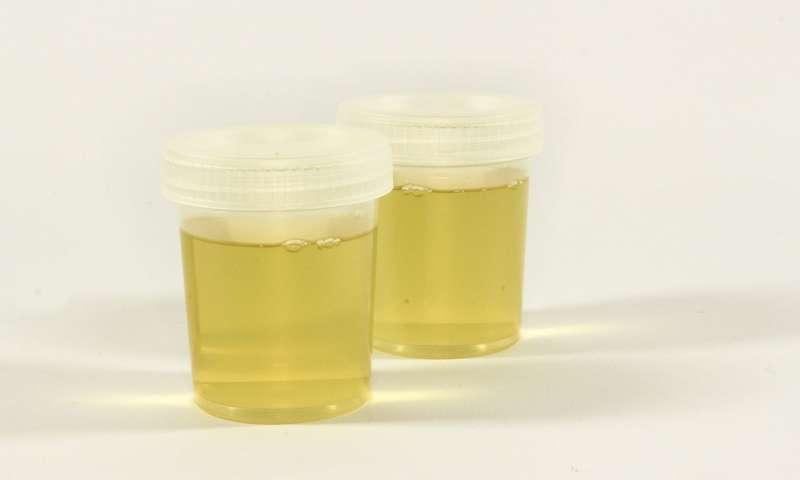 前列腺癌患者福音 家庭尿液检测可避免不必要的穿刺活检