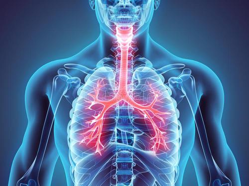 欧洲首例!意大利成功为患者植入3D打印支气管 治疗软化症和萎缩