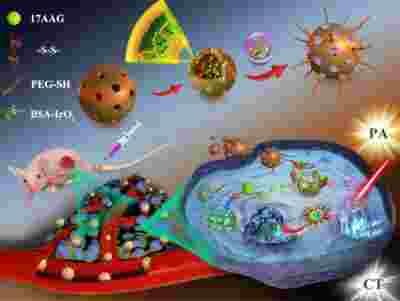 抗炎症及肿瘤的诊疗一体化方案!生物可降解介孔纳米系统来助力