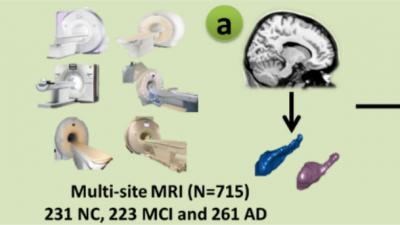 阿尔茨海默病脑影像研究获新突破!中国发现AD早期识别标记
