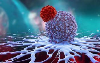 提高4期鳞状细胞癌的愈后效果的方法综述