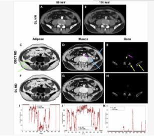借助深度学习算法 生成双重CT成像图像提高诊断速度
