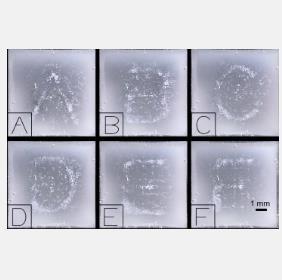 研究人员开发新型投影仪 为个体患者定制超声图更快且更容易