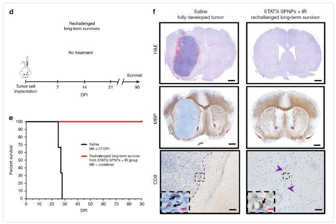 脑肿瘤完全消失!美科学家研制纳米颗粒突破血脑屏障