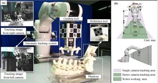 机器人辅助系统可将脊椎手术细节投影到屏幕,提升精确度