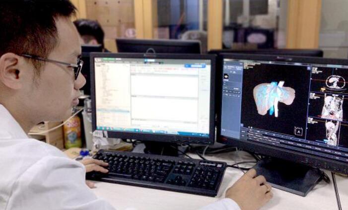 CT影像新助力!商汤科技发布肝脏、心脏AI辅助诊疗解决方案