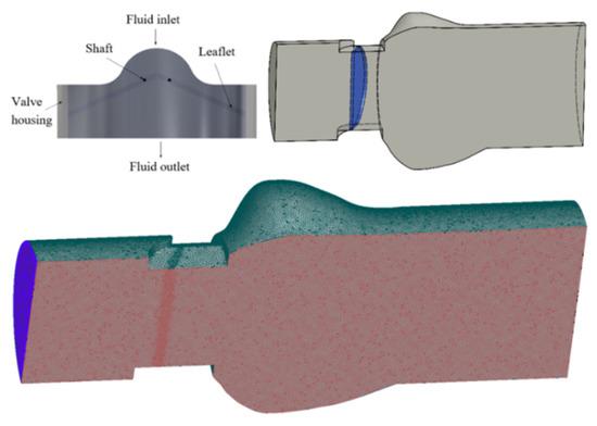 机械心脏瓣膜(MHV)是治疗心脏病的有效装置!